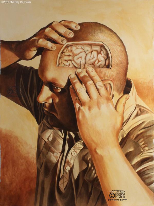 Brain Exposed